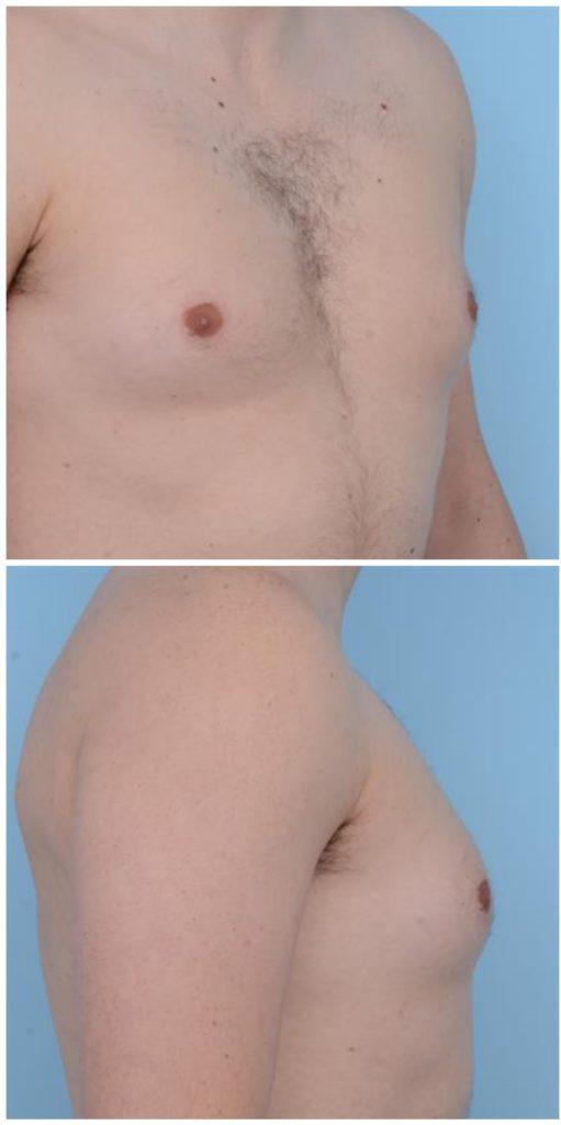 Ложная гинекомастия диета — pic 13