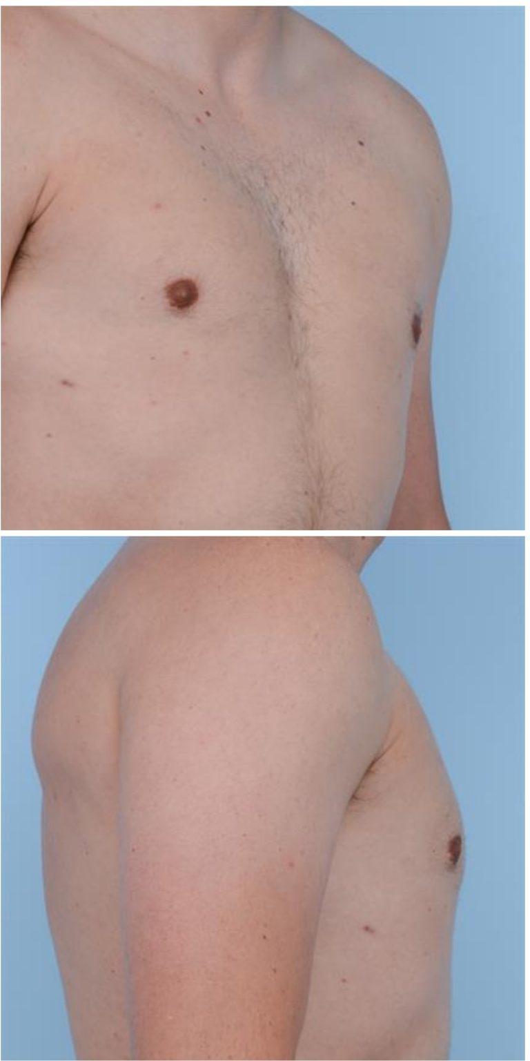 Ложная гинекомастия диета — pic 1
