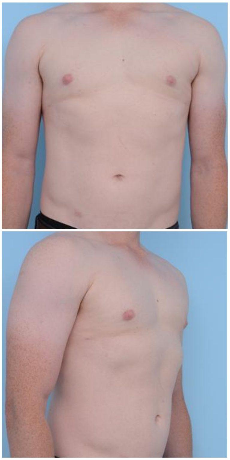 Ложная гинекомастия диета — pic 9