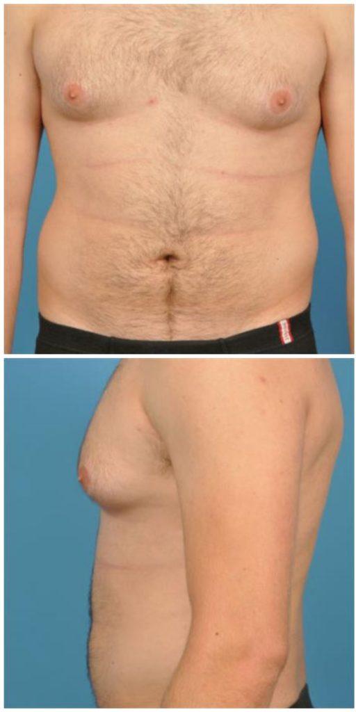 Ложная гинекомастия диета, члены в слюнях фото