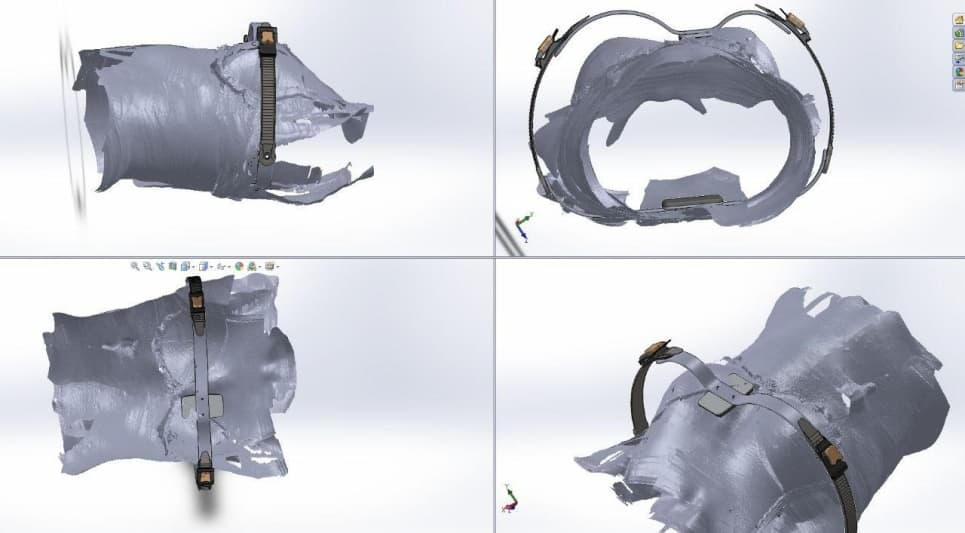моделирование корсета для килевидной деформации грудной клетки