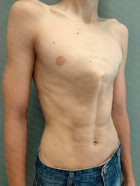 Килевидная деформация грудной клетки лечение