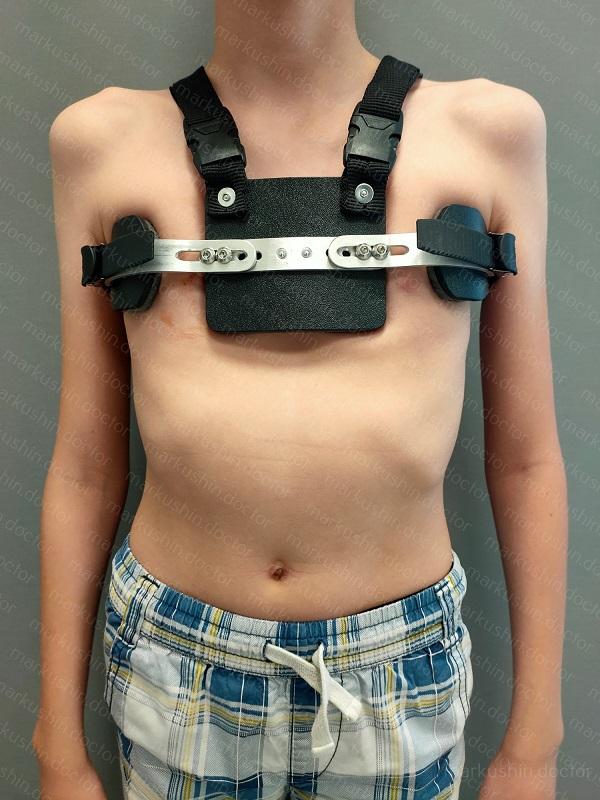Корсет детский при килевидной деформации грудной клетки