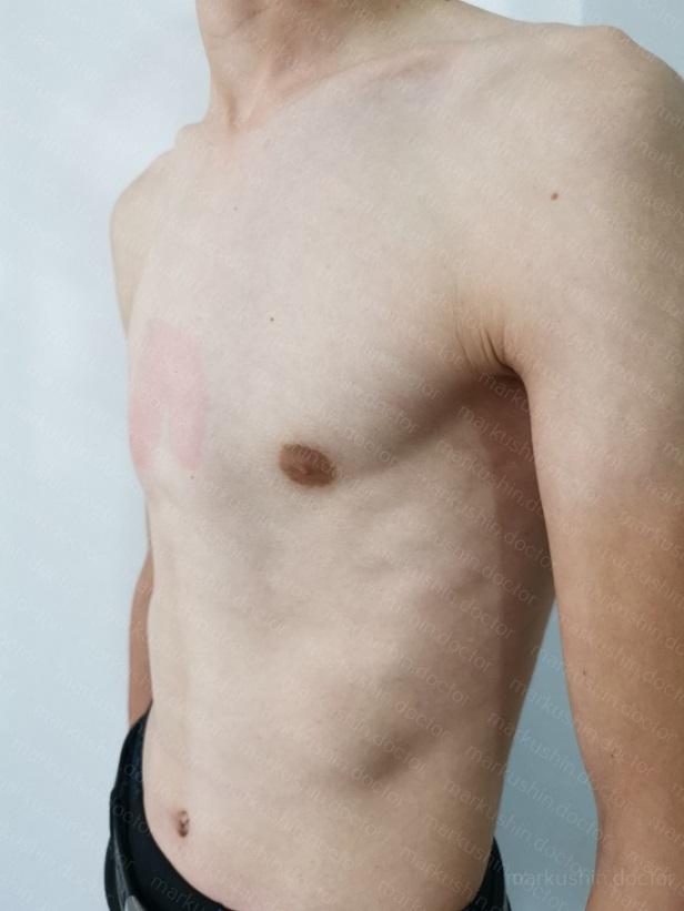 Килевидная грудная клетка корсетное лечение