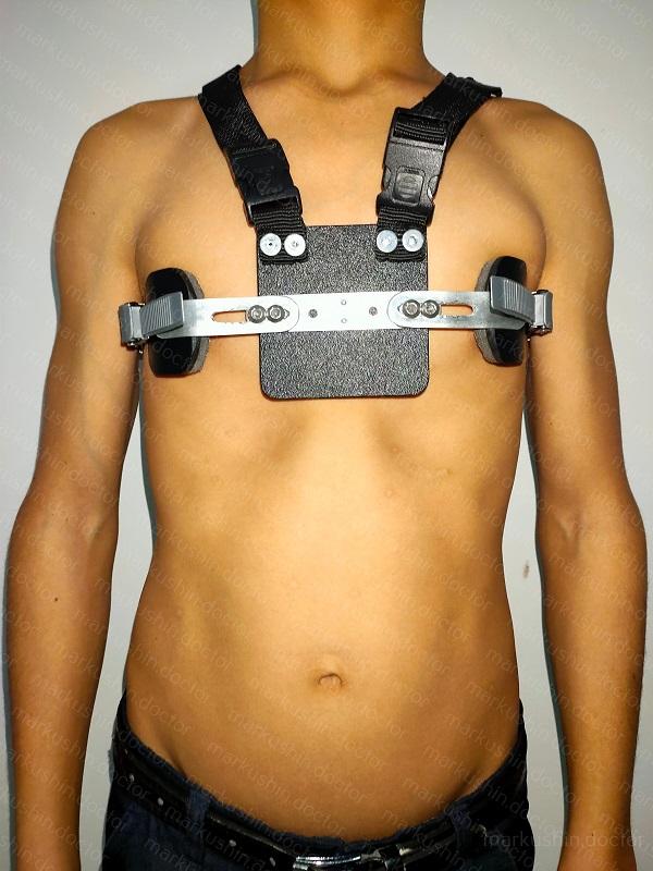 Применение компрессионной системы Ферре при килевидной деформации грудной клетки