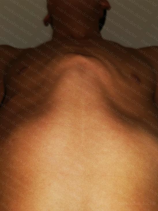 Корсета по типу Ферре для коррекции килевидной деформации грудной клетки