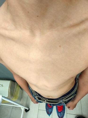 корсет для килевидной деформации грудной клетки Москва