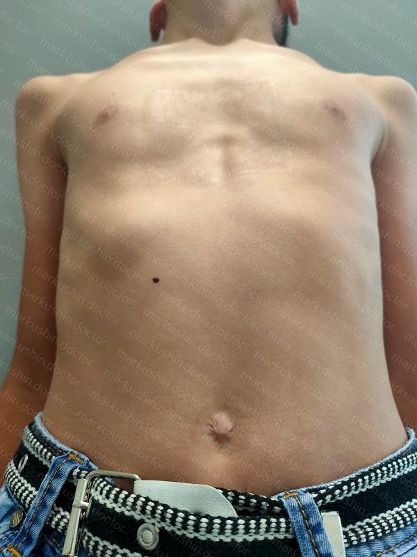 2 месяца корсет для килевидной деформации грудной клетки Москва