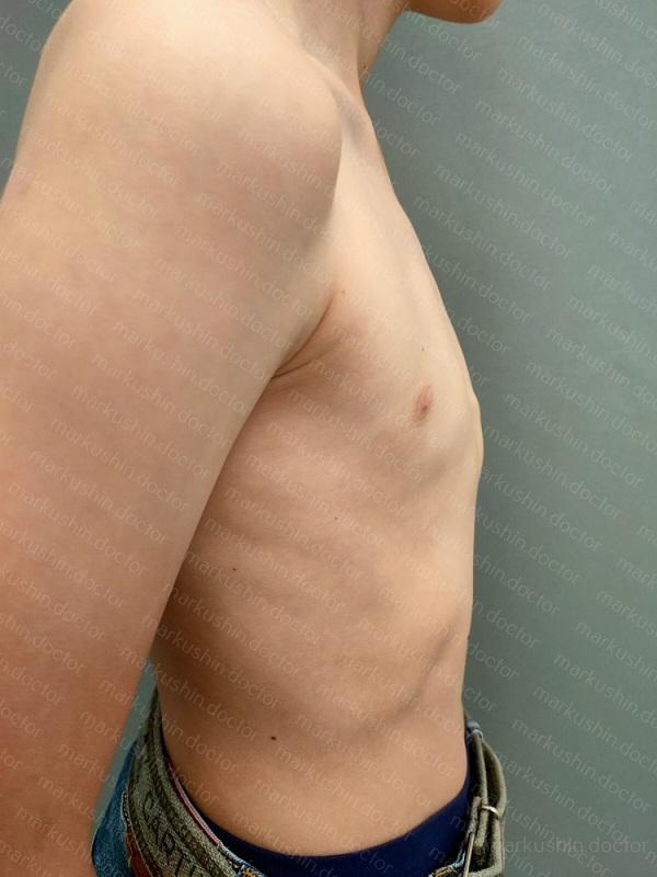 килевидная деформация грудной клетки вид сбоку справа