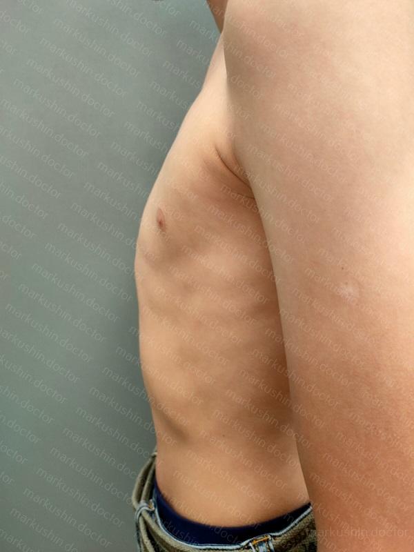 килевидная деформация грудной клетки вид сбоку слева