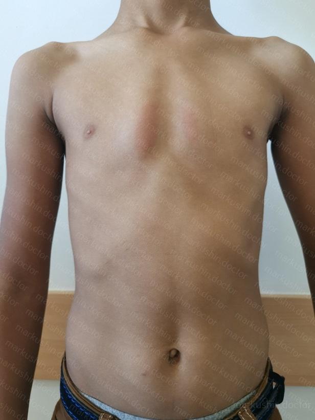 Как лечить килевидную деформацию грудной клетки с помощью корсета