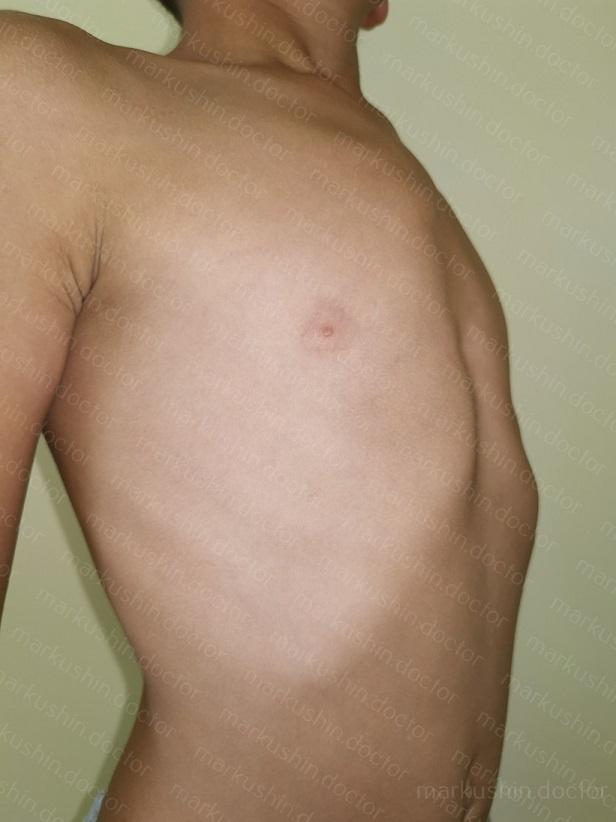 Исправить килевидную деформацию грудной клетки корсетом