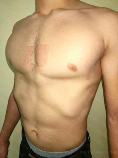 Как купить корсет на килевидную деформацию грудной клетки