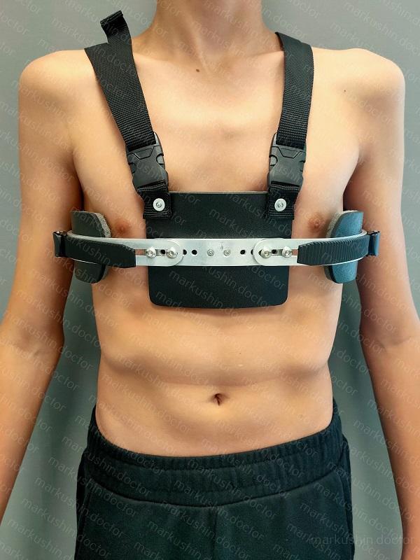 Исправление килевидной деформации грудной клетки у подростка Уфа