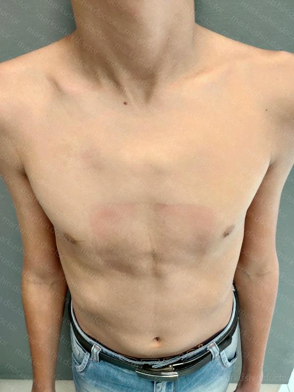 Исправление килевидной деформации грудной клетки у подростка Уфа Казань Новгород