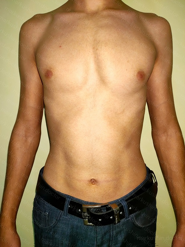 Ортез ферре при килевидной деформации грудной клетки где купить