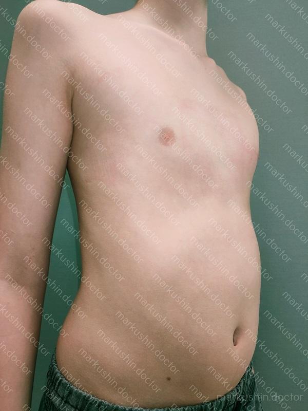 корсет для исправления киля на килевидной грудной клетки