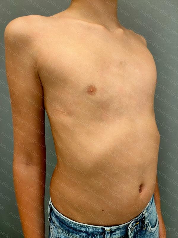 Корсет-корректор при килевидной деформации грудной клетки