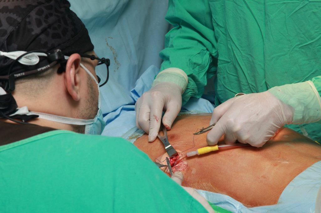 Ушивание ран после операции Насса