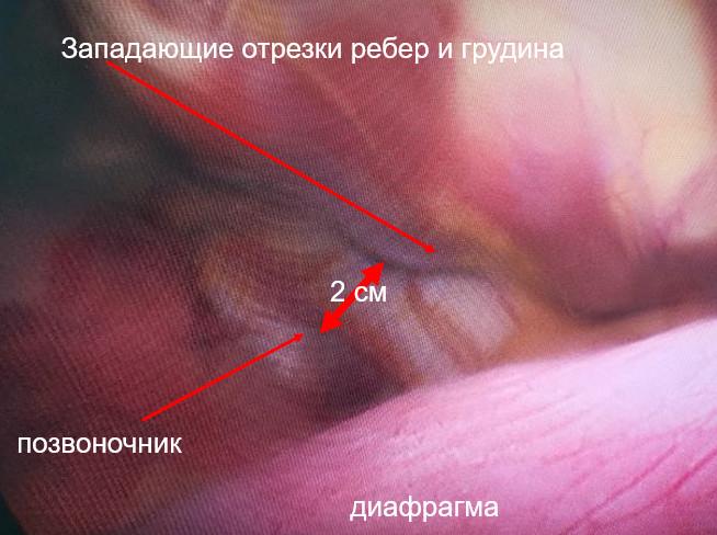 операция Насса Краснодар Ростов Грозный