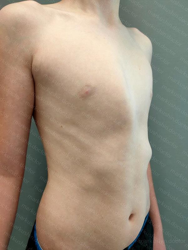 Килевидная грудная клетка. Симптомы. Диагностика. Что делать при диагнозе килевидная грудная клетка. Консервативное лечение