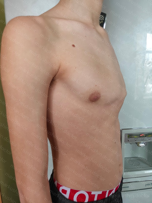 Килевидная грудь у подростка, лечение корсетом Самара, Саратов, Тольятти, Ульяновск, Казань