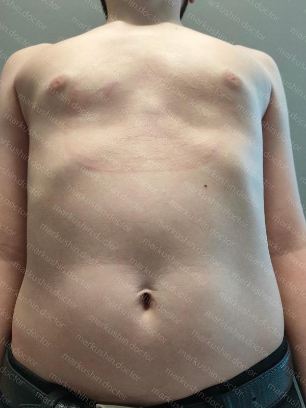 Вакуумный колокол для исправления воронкообразной деформации грудной клетки Vacuum bell купить