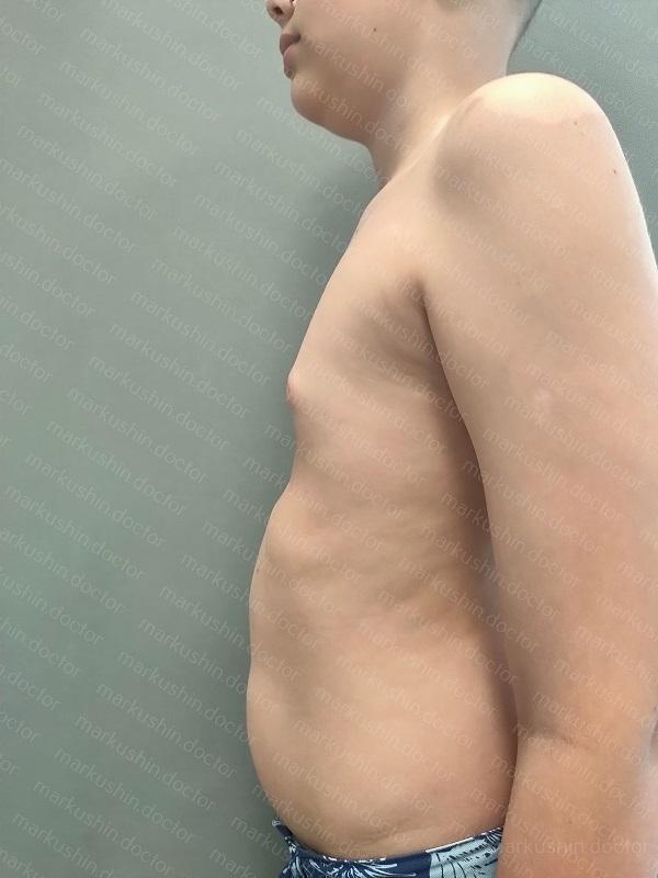 Вакуумный колокол для исправления воронкообразной деформации грудной клетки Vacuum bell купить Махачкала, Грозный, Моздок, Нальчик, Владикавказ, Пятигорск, Ставрополь