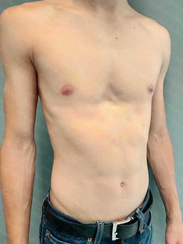Операция Насса при воронкообразной деформации грудной клетки сделать Краснодар