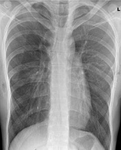 Контрольный рентгеновский снимок после удаления пластин