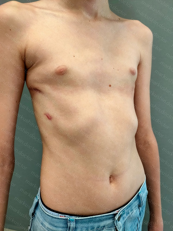 Операция Насса - минимальноинвазвиный метод хирургического лечения воронкообразной деформации грудной клетки