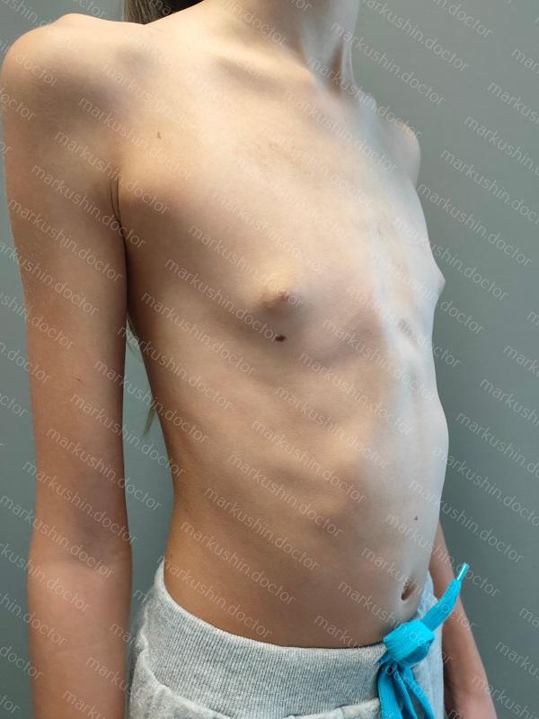 Лечение килевидной деформации грудной клетки у девочек