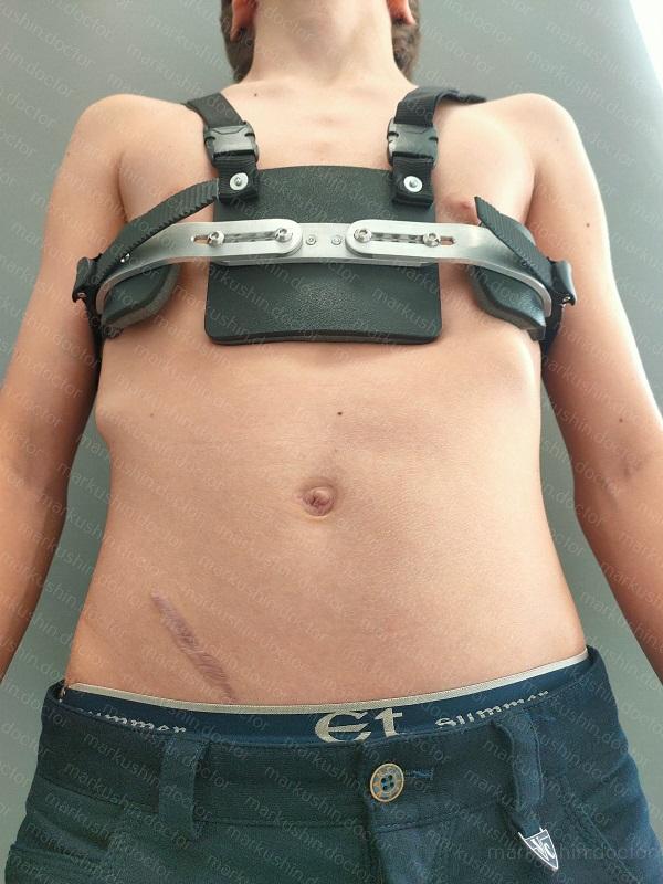 Устранение килевидной деформации грудной клетки у подростка при помощи корсета