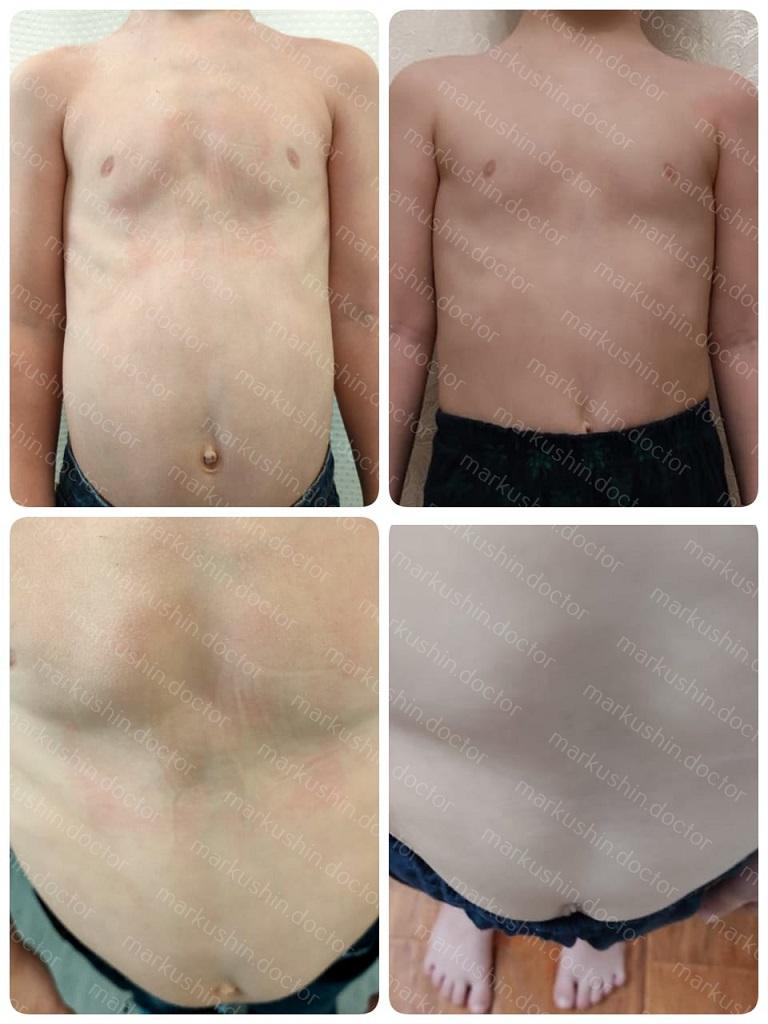 Консервативная терапия килевидной груди у ребенка 5 лет при помощи корсета