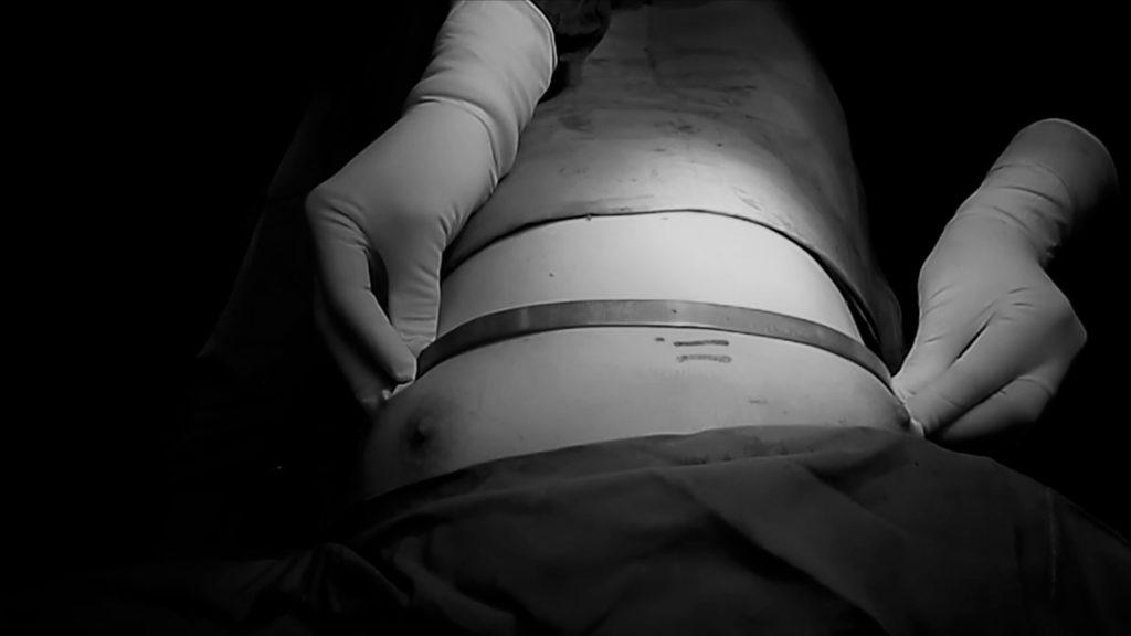 Операция Абромсона - хирургическая коррекция килевидной деформации грудной клетки