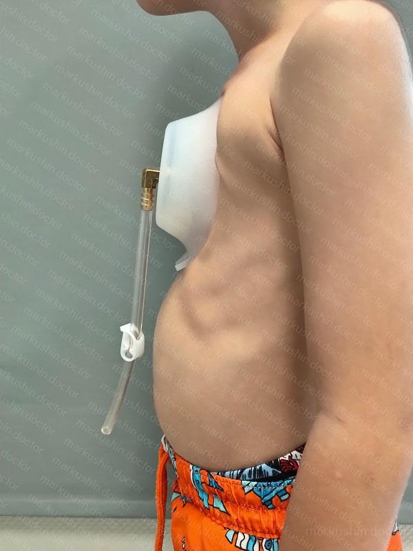 Вакуумный колокол для грудной клетки Vacuum bell Мурманск Петрозаводск Санкт-Петербург Питер Ярославль Москва Рязань Челябинск
