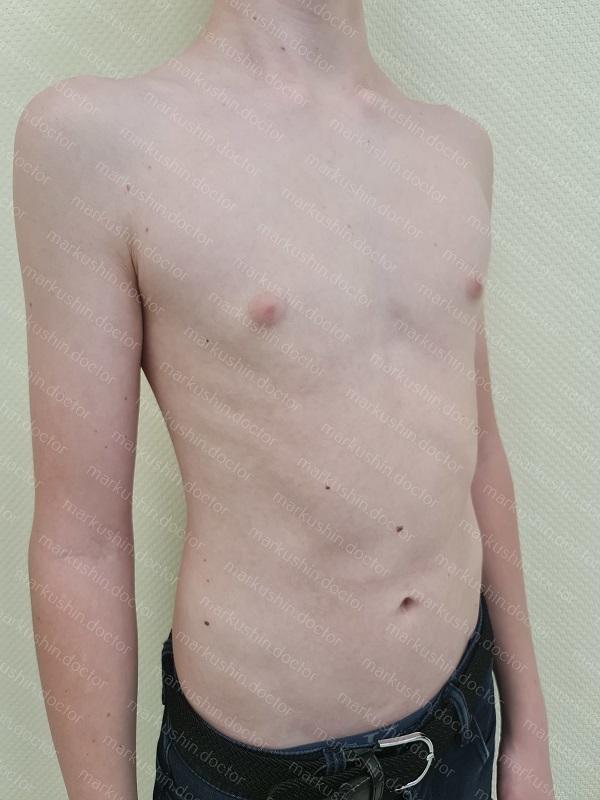 Вакуумный колокол для консервативного лечения воронкообразной деформации грудной клетки у юноши 15 лет