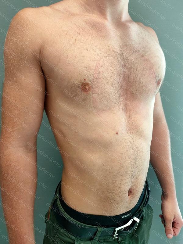 Вакуумный колокол для нехирургической коррекции воронкообразной деформации грудной клетки у юноши 19 лет