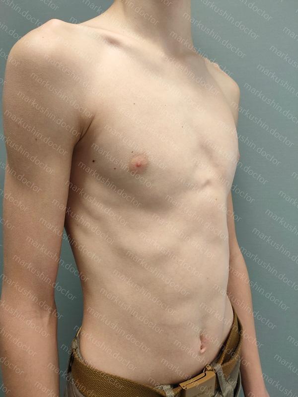 Ортез Феррена грудную клетку при килевидной деформации у подростка
