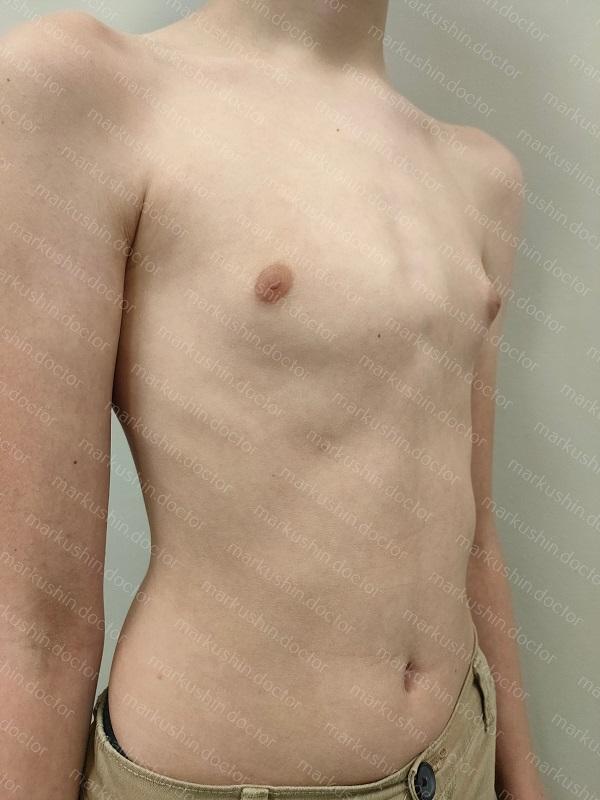 Корректор Ферре на килевидную грудную клетку для ребенка корсет ортез
