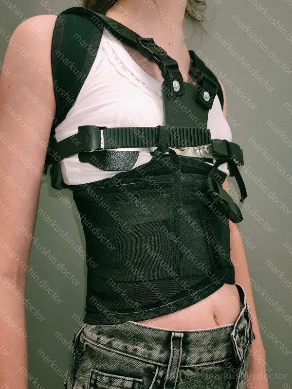 корсет для девочки при килевидной деформации грудной клетки