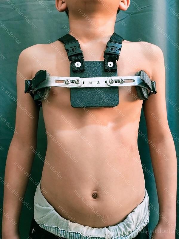 Индивидуальный ортез Ферре для коррекции килевидной деформации грудной клетки у мальчика