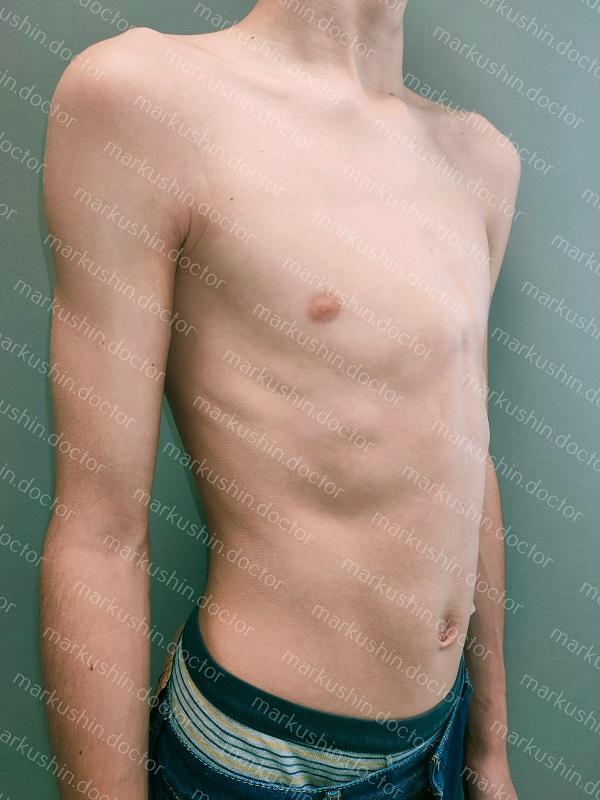 Динамическая компрессионная система по типу Ферре для коррекции килевидной деформации грудной клетки