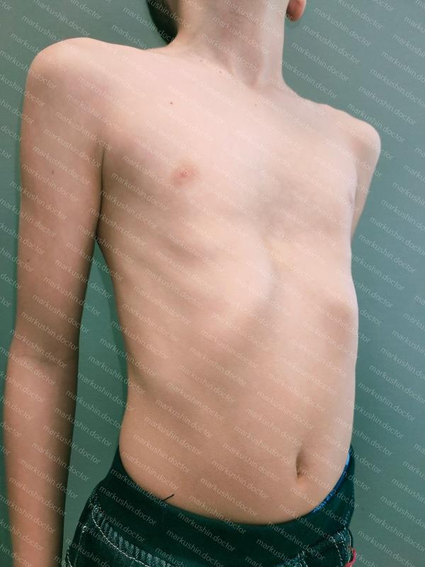 Vacuum bell вакуумный колокол выравнивание воронкообразной деформации грудной клетки у подростка 11 лет