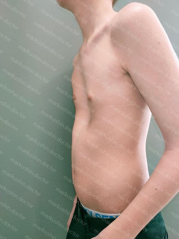 Вакуумный корректор деформации грудной клетки Vacuum bell