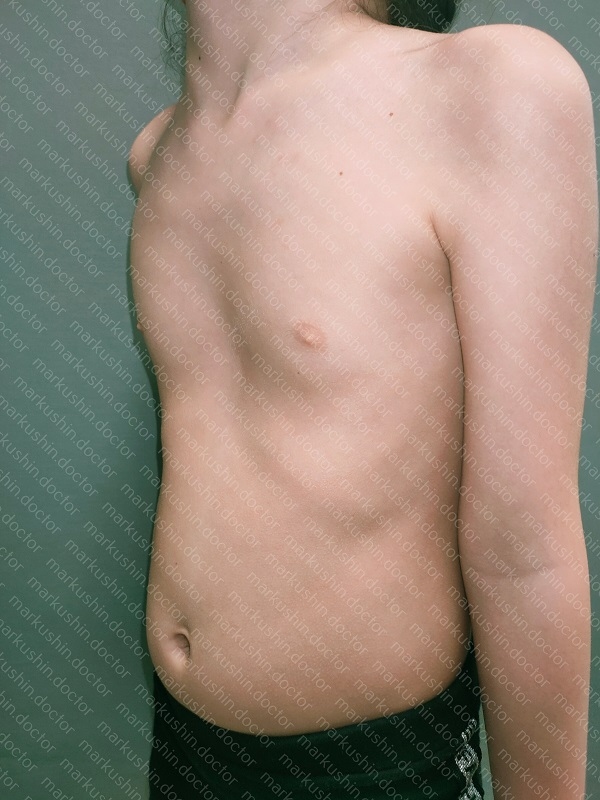 Vacuum bell Вакуумный колокол у девочки 5 лет при воронкообразной деформации грудной клетки