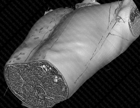 Эффективность вакуумного колокола Vacuum bell у взрослых при коррекции воронкообразной деформации грудной клетки