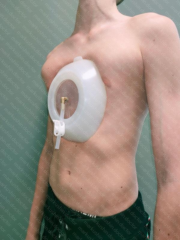 Вакуумный колокол ВДГК Vacuum bell